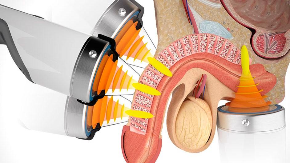 lechenie-erektilnoj-disfunktsii zabolotniy